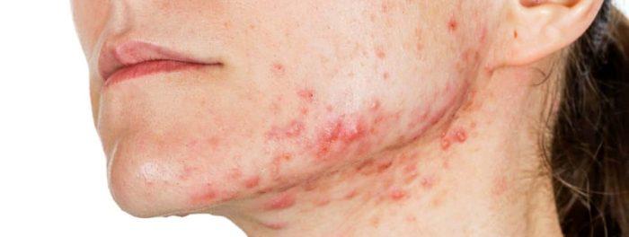 hudplager kan komme fra lekk tarm